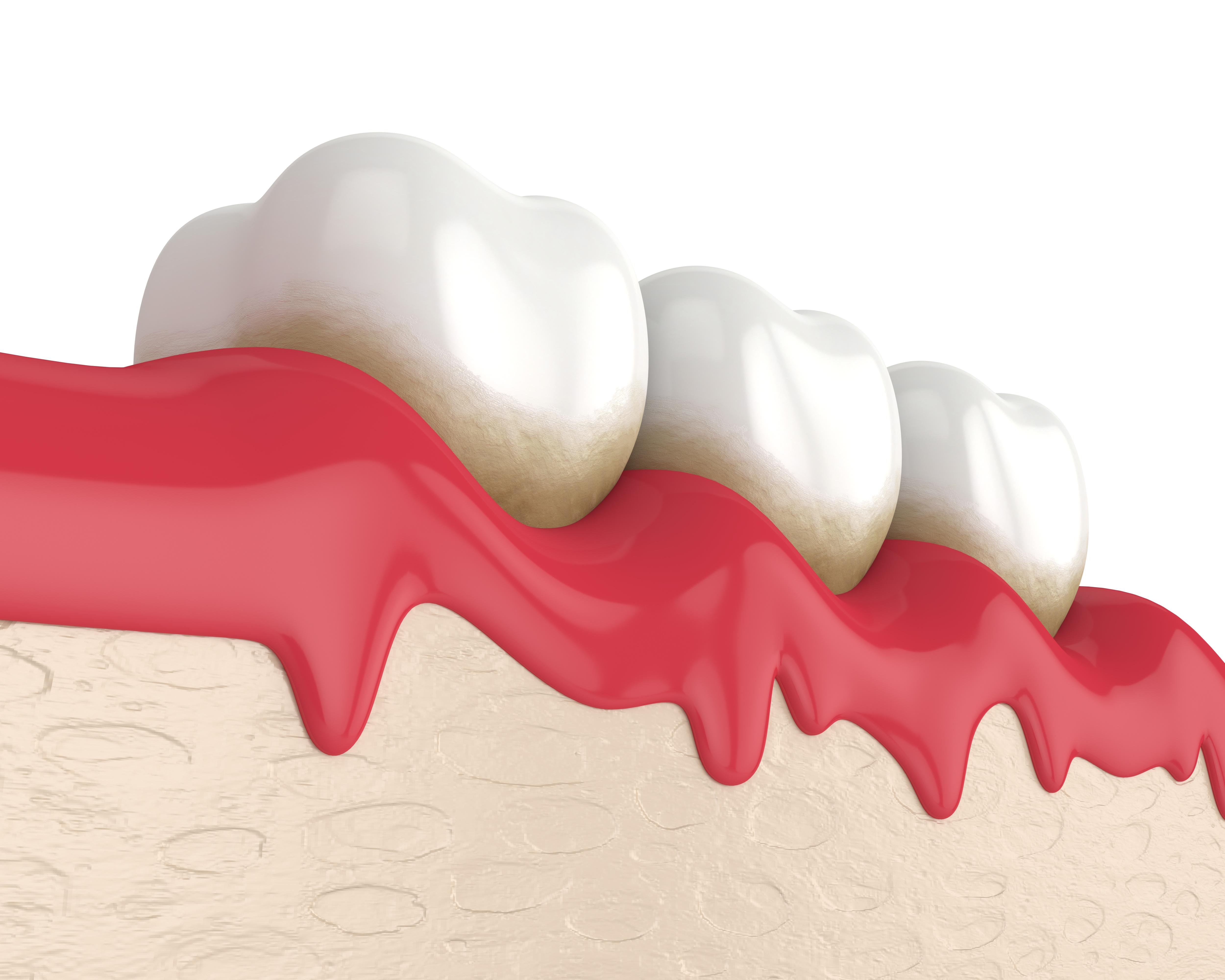 Dental%20peridontal.jpeg